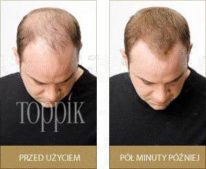 Zagęszczanie włosów w 30 sekund – czy to naprawdę działa?
