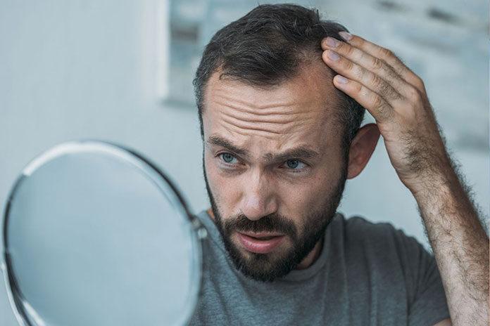 Mężczyzna z problemem łysienia przed wizytą u trychologa w Krakowie